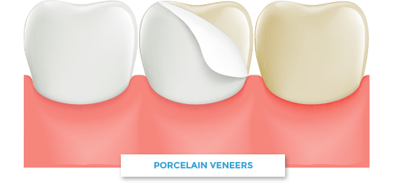 porcelain veneer cartoon on teeth