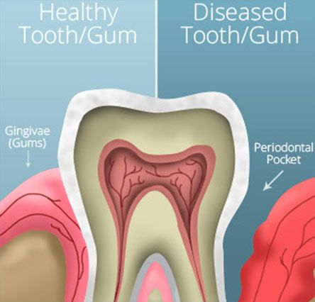 healthy versus diseased teeth