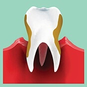 Tooth with decay cartoon