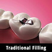 traditional metal fillings